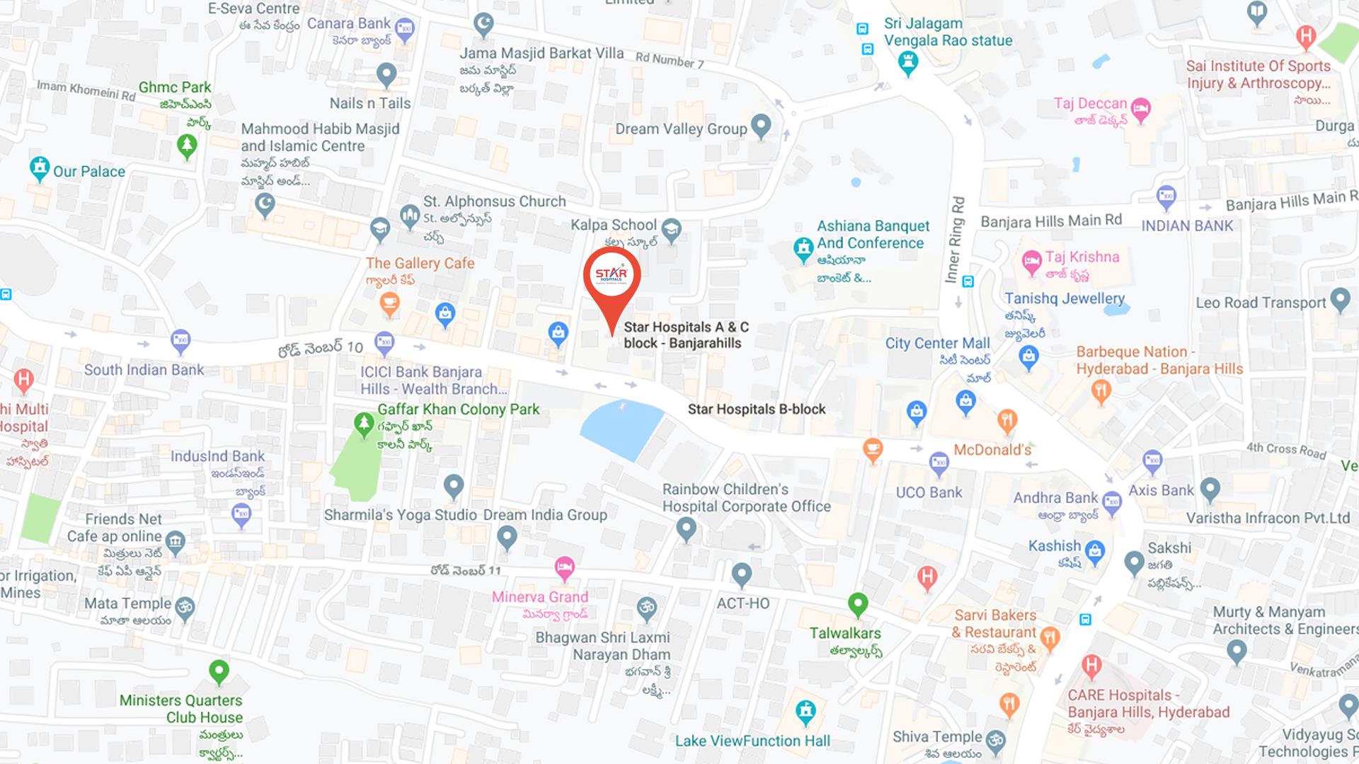 Best Multi Specialty Hospital in Hyderabad   Star Hospitals